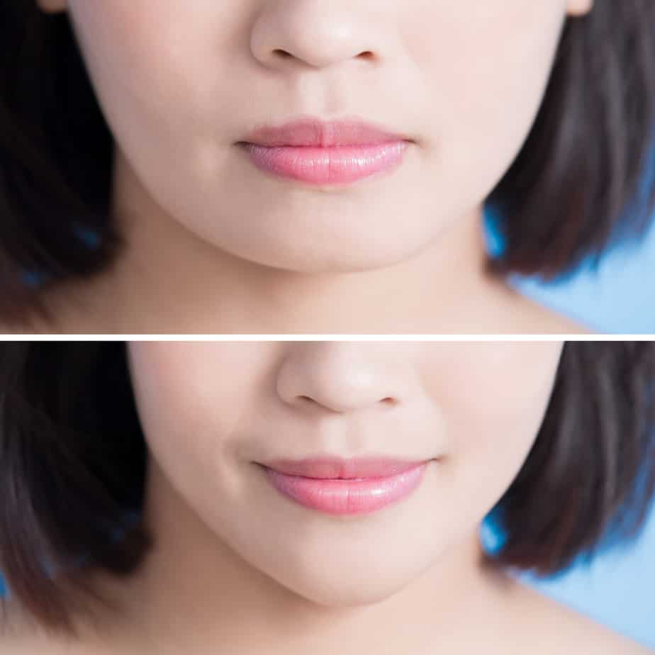 MODEL: Before and after of Chin Implant